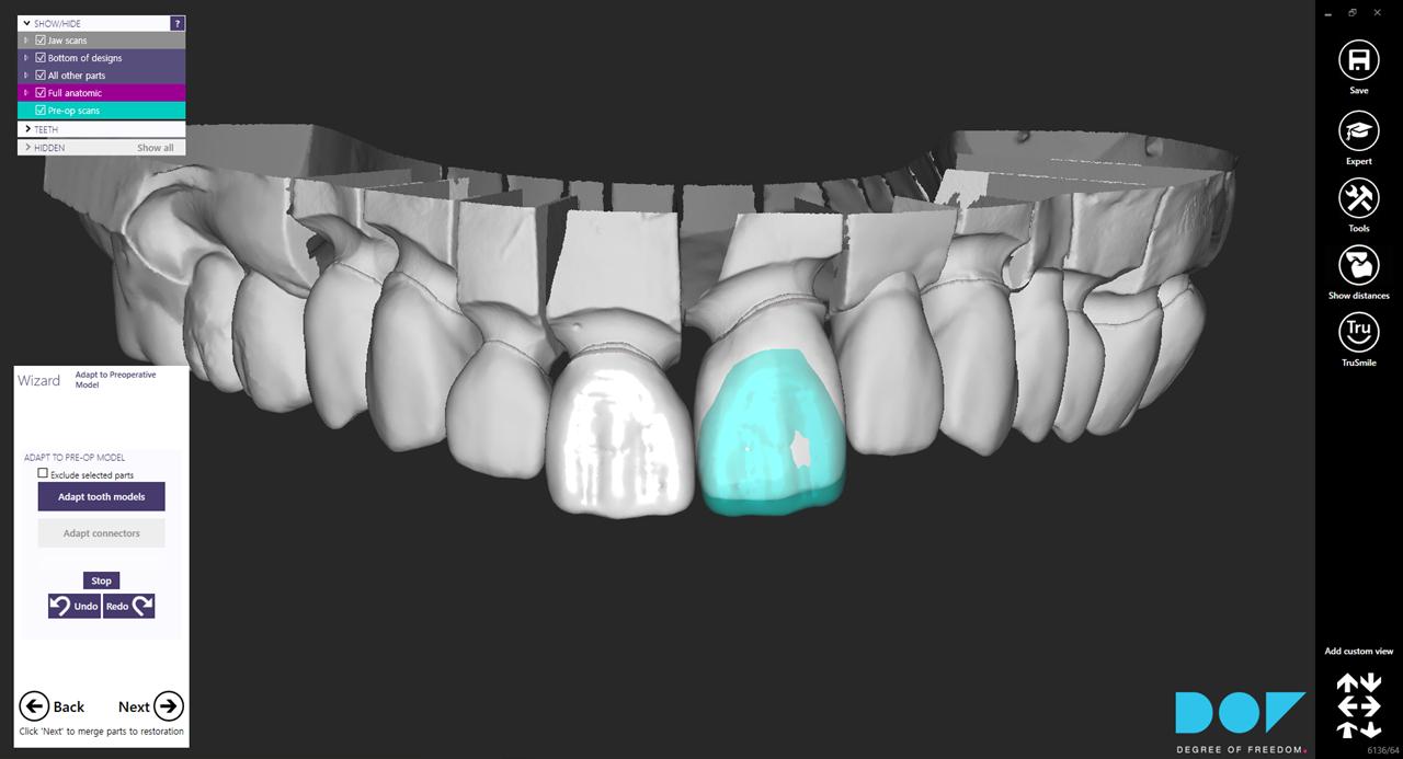 How to Copy a Designed Tooth